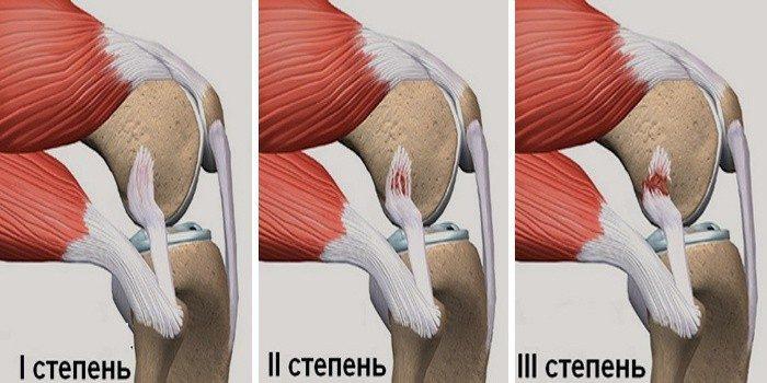 Растяжение связок коленного сустава: симптомы и лечение