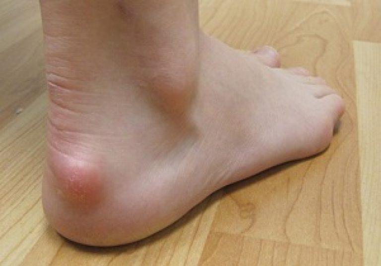 Ахиллов бурсит лечение заболевания причины и симптомы