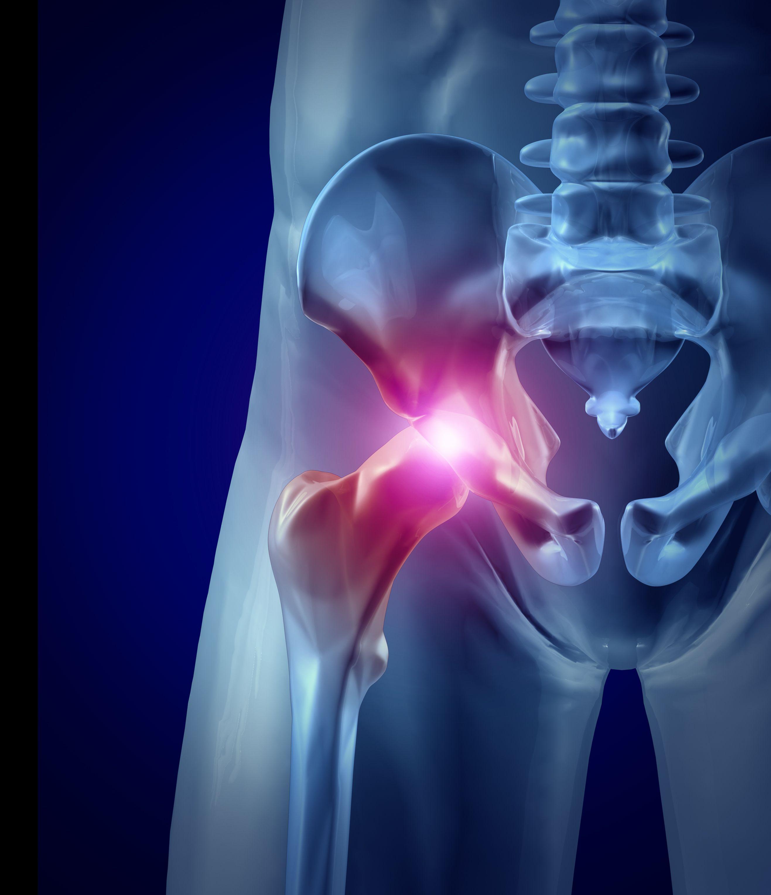 растяжение тазобедренного сустава симптомы лечение