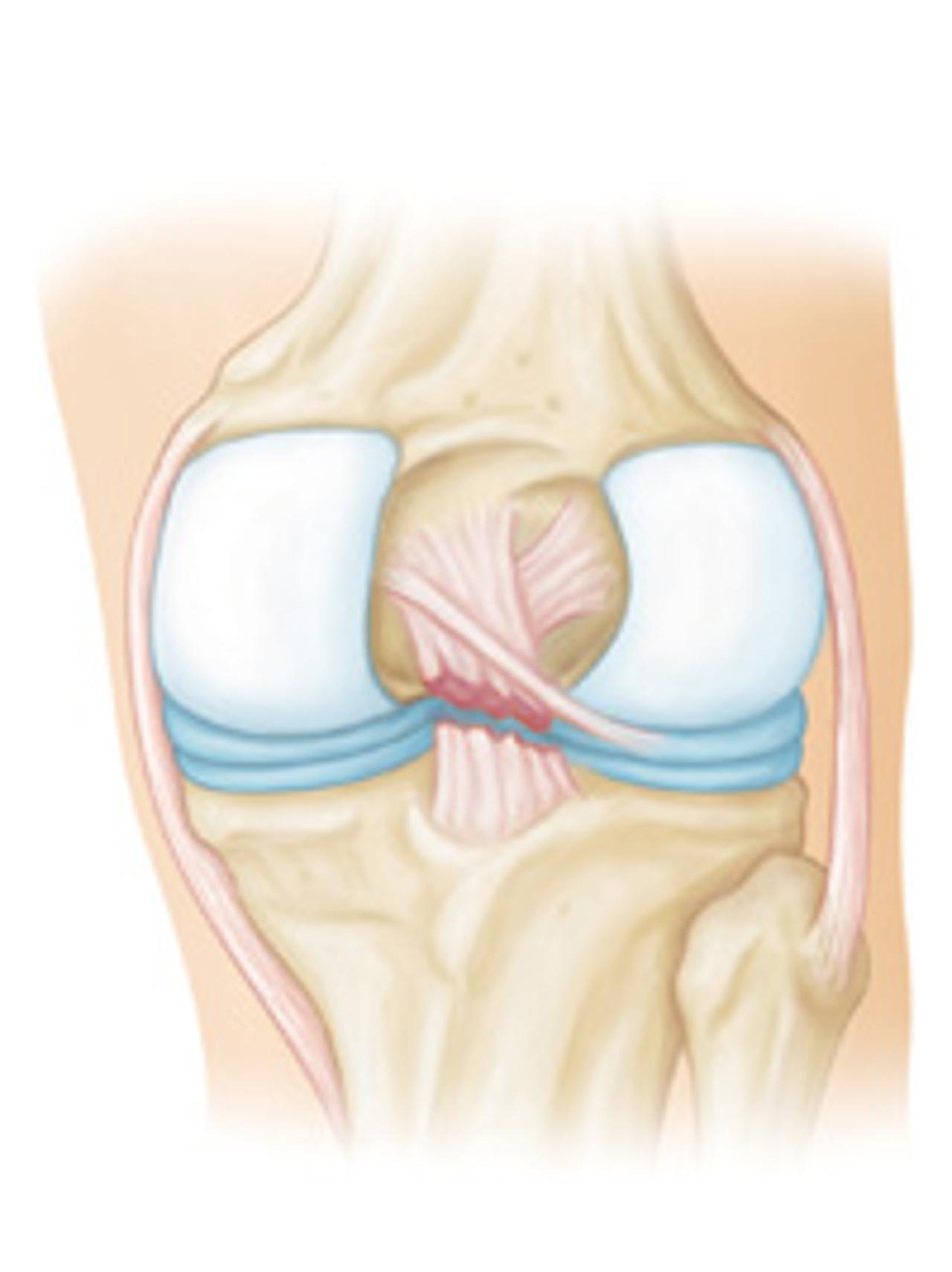 Частичное повреждение волокон передней крестообразной связки
