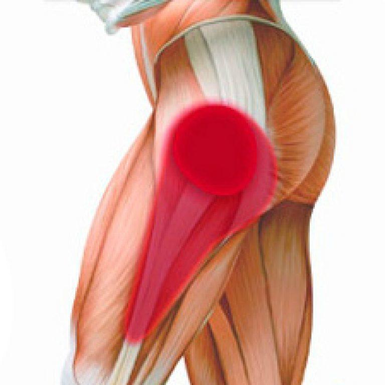 Связки тазобедренного сустава (анатомия), разрыв, растяжение и воспаление сухожилий и связочного аппарата таза