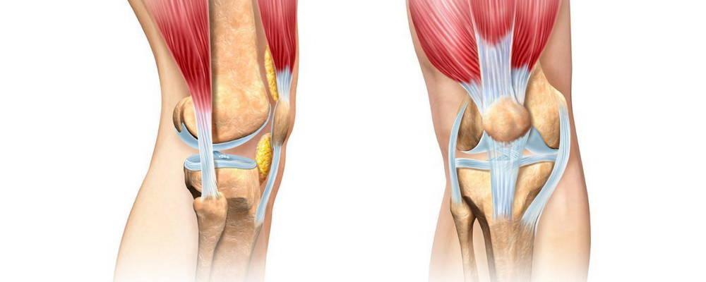 Разрыв крестообразной связки колена: симптомы, лечение и восстановление
