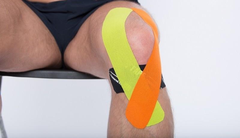 Тейпирование колена передней крестообразной связки