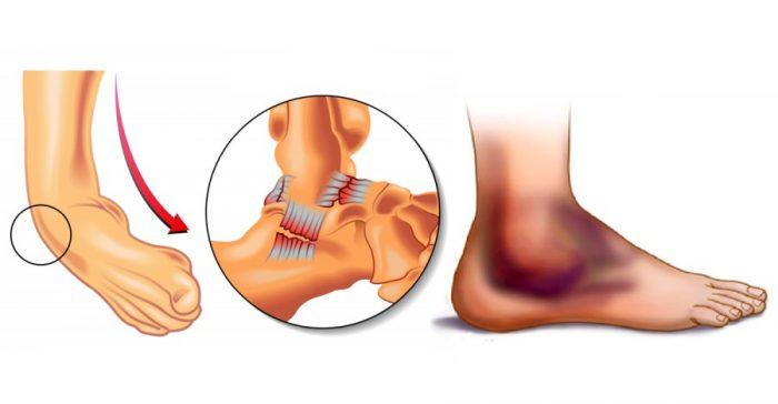 Ушиб голеностопного сустава основные признаки первая помощь тактика лечения