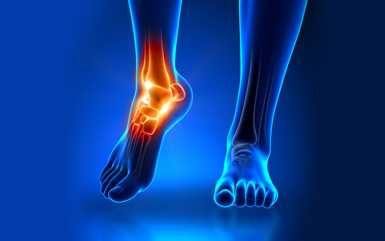 Как быстрее восстановить связки голеностопа упражнения при травмах ЛФК после разрыва реабилитация