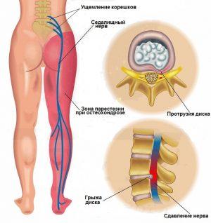 Онемение мышцы бедра правой (левой) ноги — причины, почему немеет наружная, передняя и задняя поверхность бедра