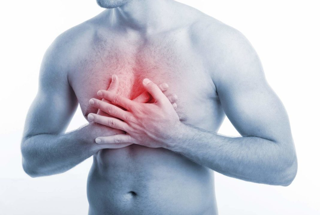 Растяжение грудной мышцы - симптомы, причины и лечение