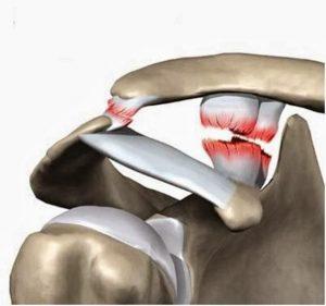 Изображение - Разрыв связок плечевого сустава лечение операция razryv-300x281