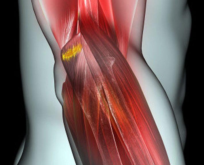 Растяжение связок локтевого сустава симптомы
