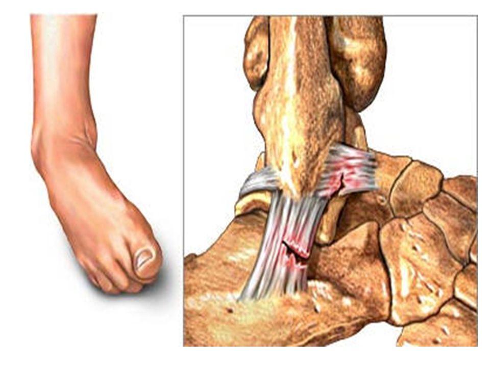 Разрыв связок голеностопа сколько заживает
