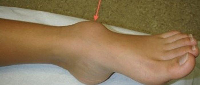 Шишки на пятках сзади с внешней стороны: фото небольшого бугорка и операция по удалению нароста на подошве стопы