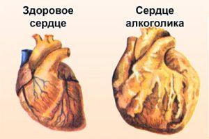 Как алкоголь влияет на сердечно-сосудистую систему?