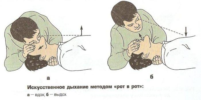 Сколько нажатий при непрямом массаже сердца