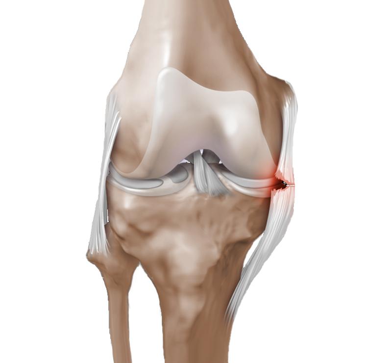 Растяжение связок коленного сустава: лечение в домашних условиях