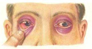 Перелом свода черепа: симптомы, диагностика, лечение и последствия