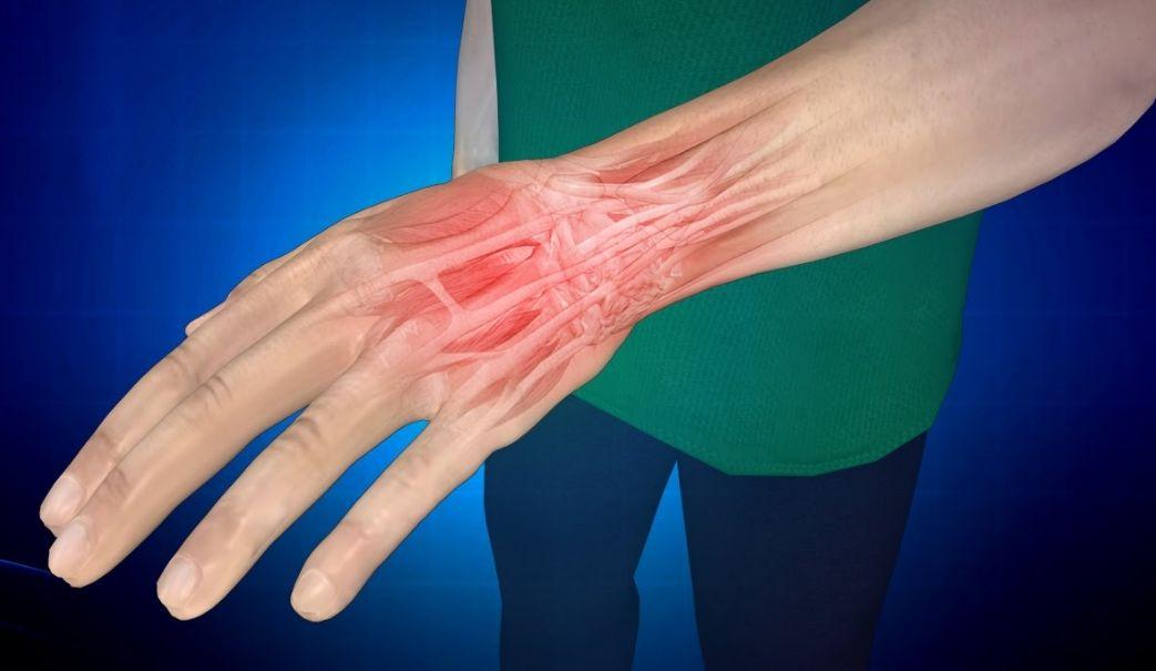 Первая помощь при растяжении кисти руки