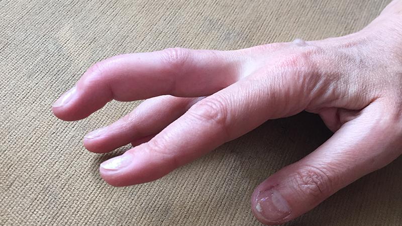 Что делать при растяжении пальца на руке — Суставы