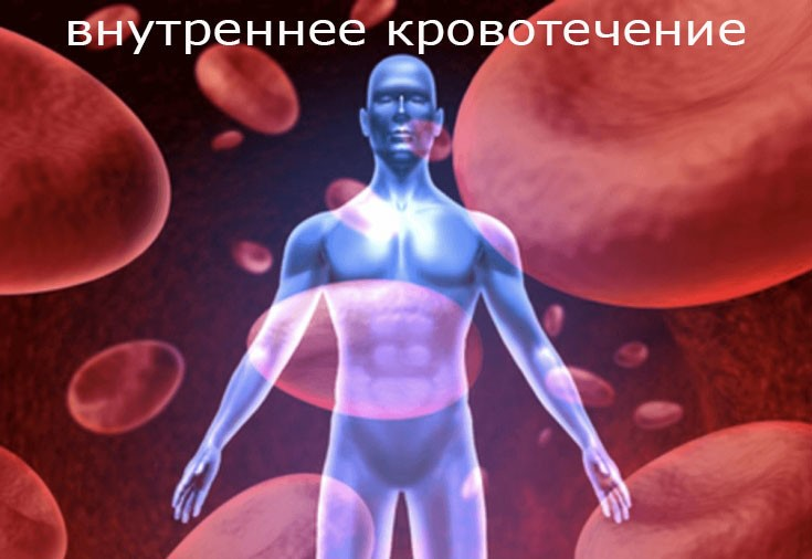 Внутреннее кровотечение — симптомы и причины внутрибрюшного и внутриматочного кровотечения, первая помощь