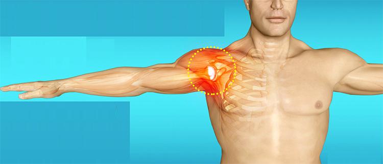 Воспаление связок плечевого сустава лечение