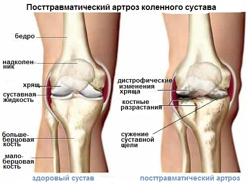 Разрыв передней крестообразной связки правого коленного сустава