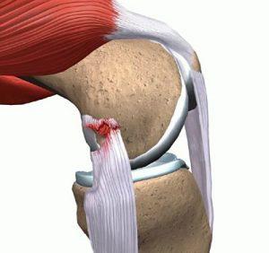 Изображение - Разрыв задней крестообразной связки коленного сустава chastichnyj-nadryv-300x282