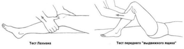 Изображение - Дегенеративное изменение левого сустава image-1-700x188