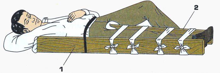 Особенности наложения шины крамера при переломах