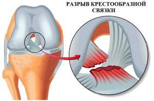 Изображение - Дегенеративное изменение левого сустава razryv-kresta-300x197
