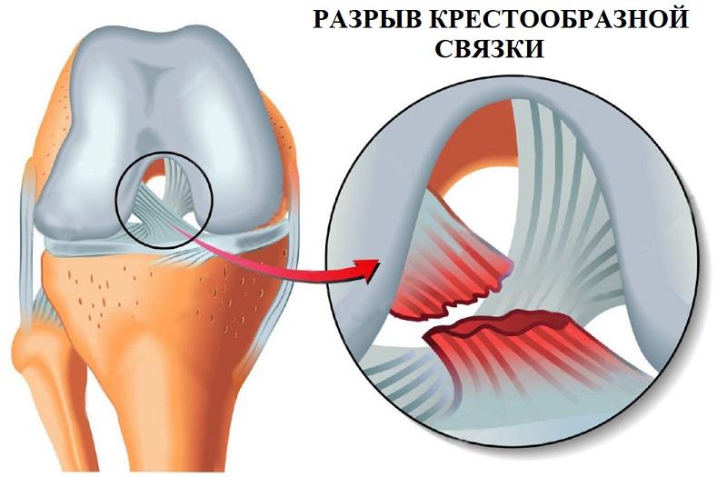 Растяжение и разрыв задней передней крестообразной связки коленного сустава