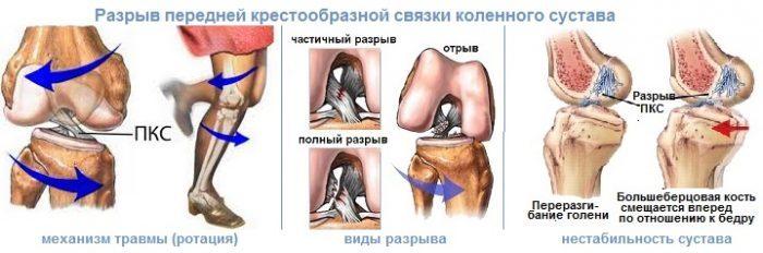 Частичный разрыв передней крестообразной связки коленного сустава Суставы
