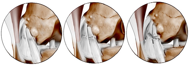 Изображение - Надрыв передней крестообразной связки коленного сустава лечение razryv-svyazok-kolena