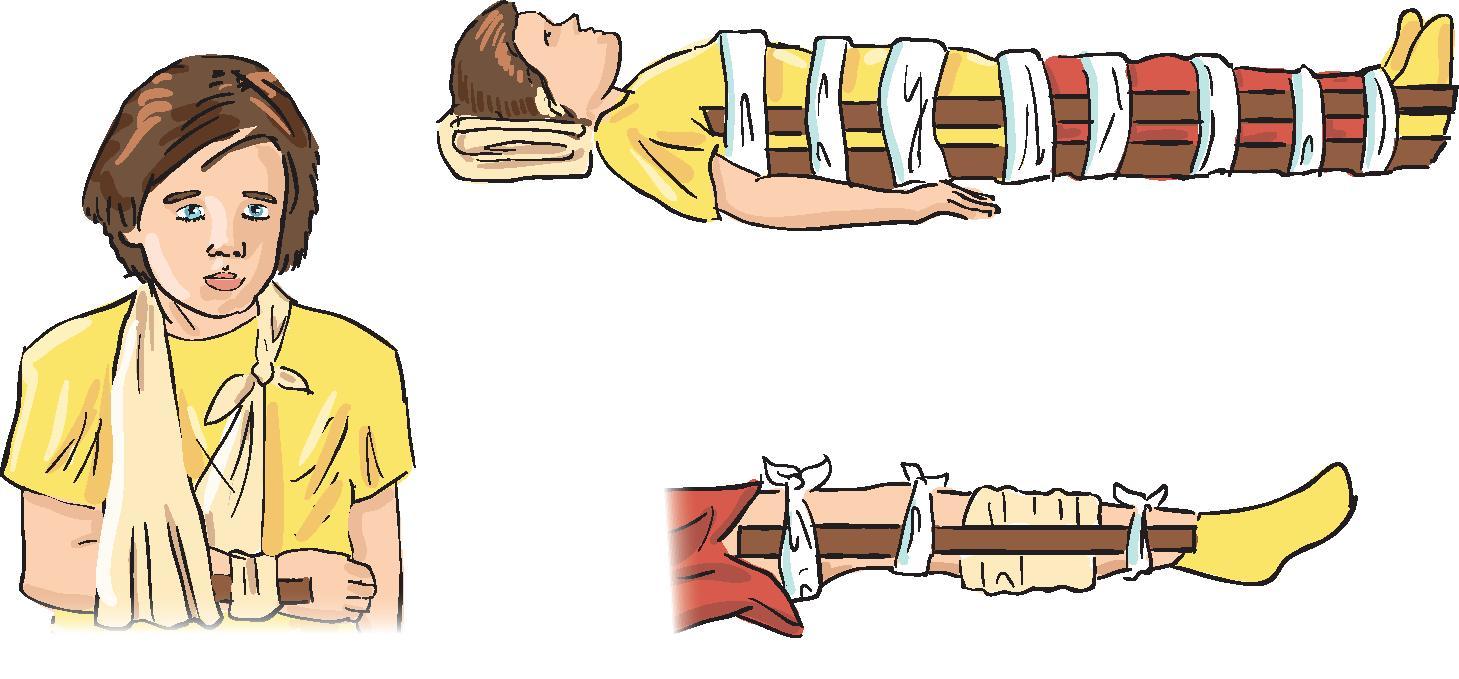 Закрытый перелом голени первая помощь картинки