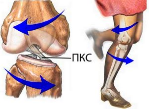 Как лечить разрыв связок коленного сустава — Суставы