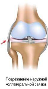 Лечение связок коленного сустава в домашних условиях