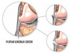 Как долго заживает разрыв связок колена