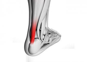 Симптомы растяжения мышц шеи и лечение