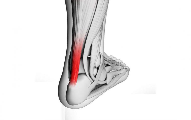 Воспаление ахиллова сухожилия — лечение и симптомы, как лечить тендинит ахиллесова сухожилия пяточной части домашних условиях