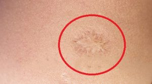 От какой прививки шрам на левом плече
